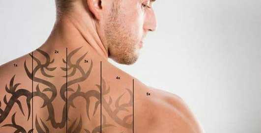 Неодимовые лазеры:  лучшее решение неудачного тату