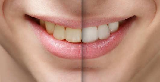 4 способа сделать твою улыбку белоснежной
