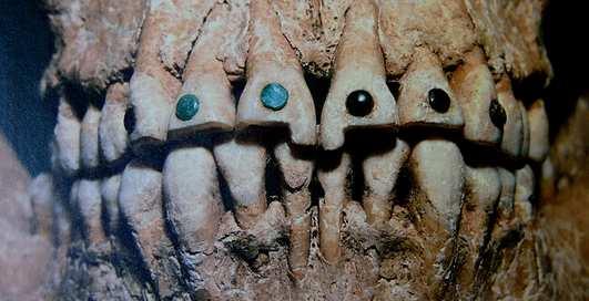 Самые жуткие зубные протезы в истории человечества