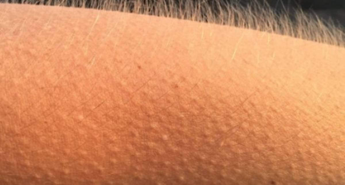 Ученые рассказали, что означают мурашки по коже